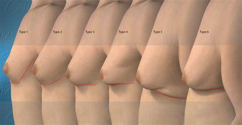 loss of breast tissue jpg 2208x1150