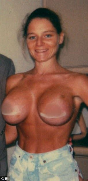 Tips for tanning after breast surgery cosmetic surgery jpg 306x629