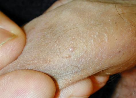 Whats the difference between genital warts and skin tags jpg 600x435