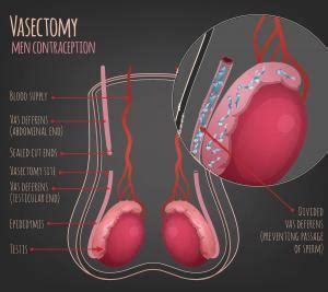 Poststerilization intimacy sex after a vasectomy jpg 300x267