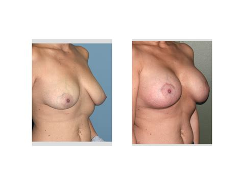 Areola reduction plastic surgery in new jersey montclair jpg 1750x1352