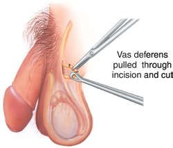 How long after a vasectomy is it safe to ejaculate jpg 250x213